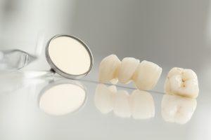 Dental bridges in Ellington replace missing teeth